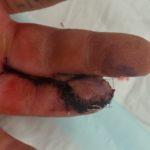 Cross finger flap reconstruction of fingertip amputation