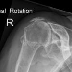 Rotator cuff arthropathy