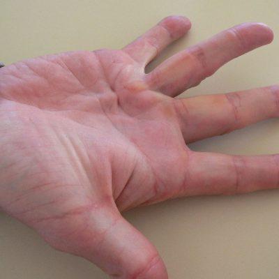 Dupuytren-disease