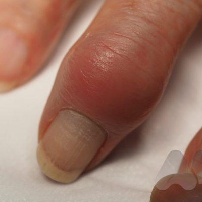 DIP joint arthritis