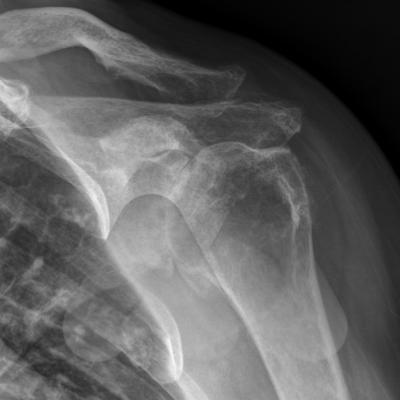 Primary shoulder osteoarthritis