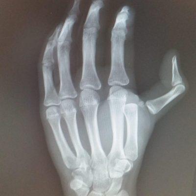 Thumb MP dislocation XR 1 AM