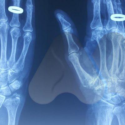 Thumb CMC joint arthritis